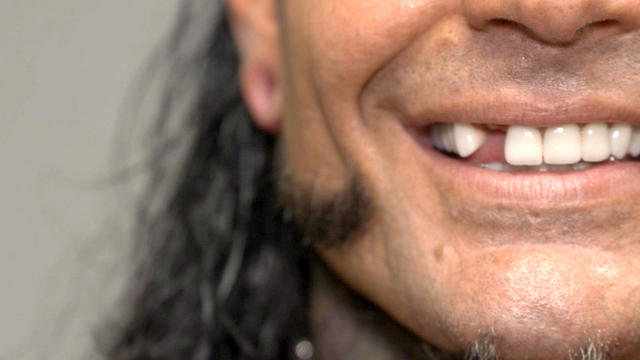 Jeff Hardy receives medical attention for his broken tooth: WWE.com Exclusive, April 30, 2017